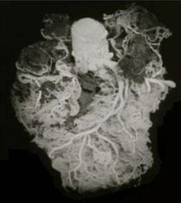 כלי הדם בדגם של ברולדי